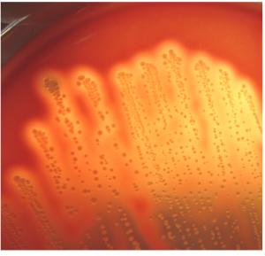 A群溶血性レンサ球菌