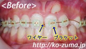 歯列矯正 子供